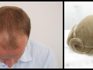 Hair Transplant Or Hair Replacement