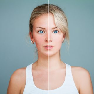 Sun Damage Prevention: How to Protect Your Skin and Eyes
