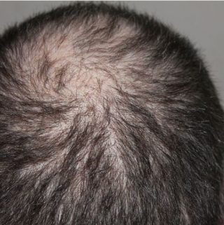 5 Things To Know On Avoiding Hair Loss