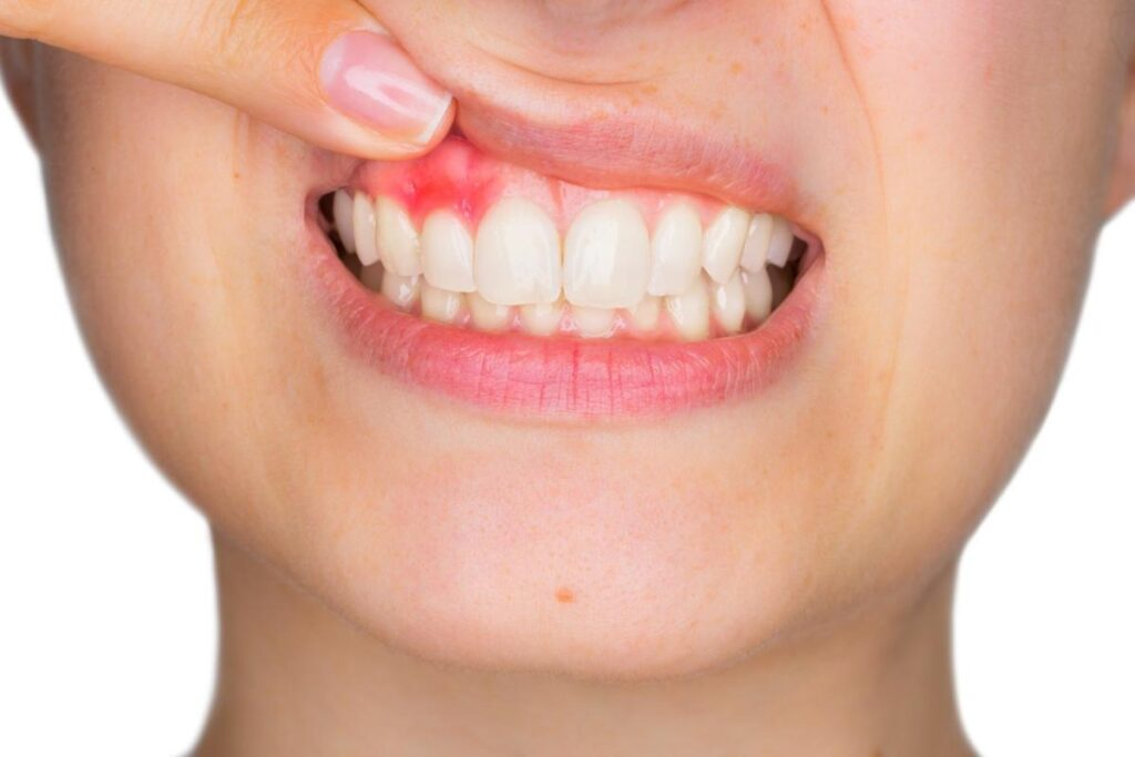 Healthy Gums vs Unhealthy Gums: What's the Difference