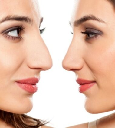 4 Myths About Nose Jobs That Shouldn't Stop From Getting One