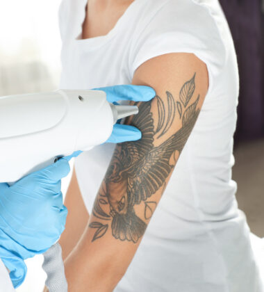 Laser Tattoo Removal: Should You Get One?